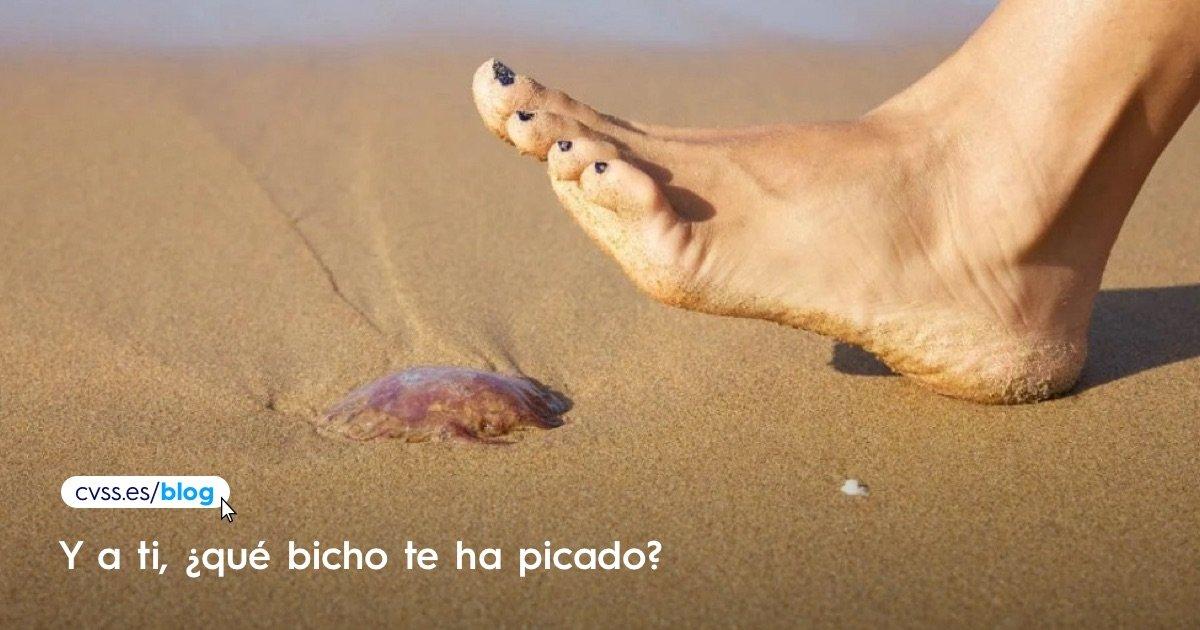 picadura de medusa o salvario