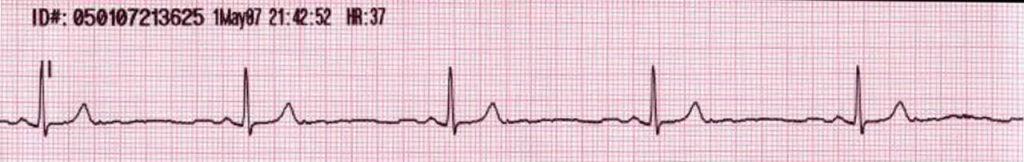 Ritmos de parada cardiorrespiratoria: Actvidad Eléctrica sin pulso