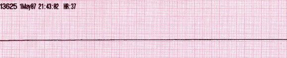 Ritmos de parada cardiorrespiratoria: Asistolia