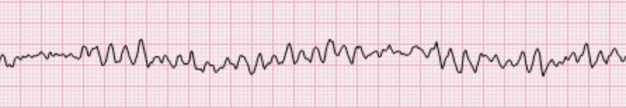 Ritmos de parada cardiorrespiratoria: Fibrilación ventricular