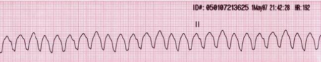 Ritmos de parada cardiorrespiratoria: Taquicardia ventricular sin pulso